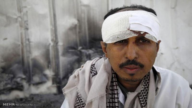 Saudijske snage mučile i otimale jemenske civile