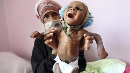 یمن میں قحط سالی کا خدشہ: اقوام متحدہ