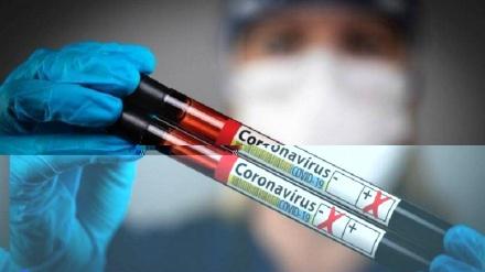 Ermənistanda son sutkada 354 nəfər koronavirusa yoluxub, 10 nəfər ölüb